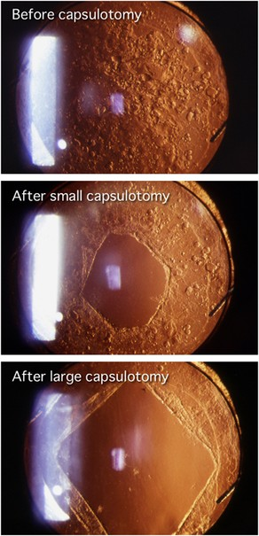 thesis on posterior capsular opacification Published june 15, 2015 'capping off' cataract surgery posterior capsular opacification is the most common complication of cataract surgery.